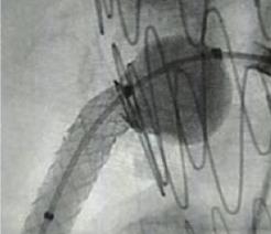 Post-dilatation with FLASH