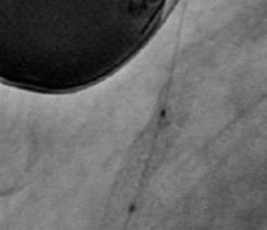 Stent protruding into aorta