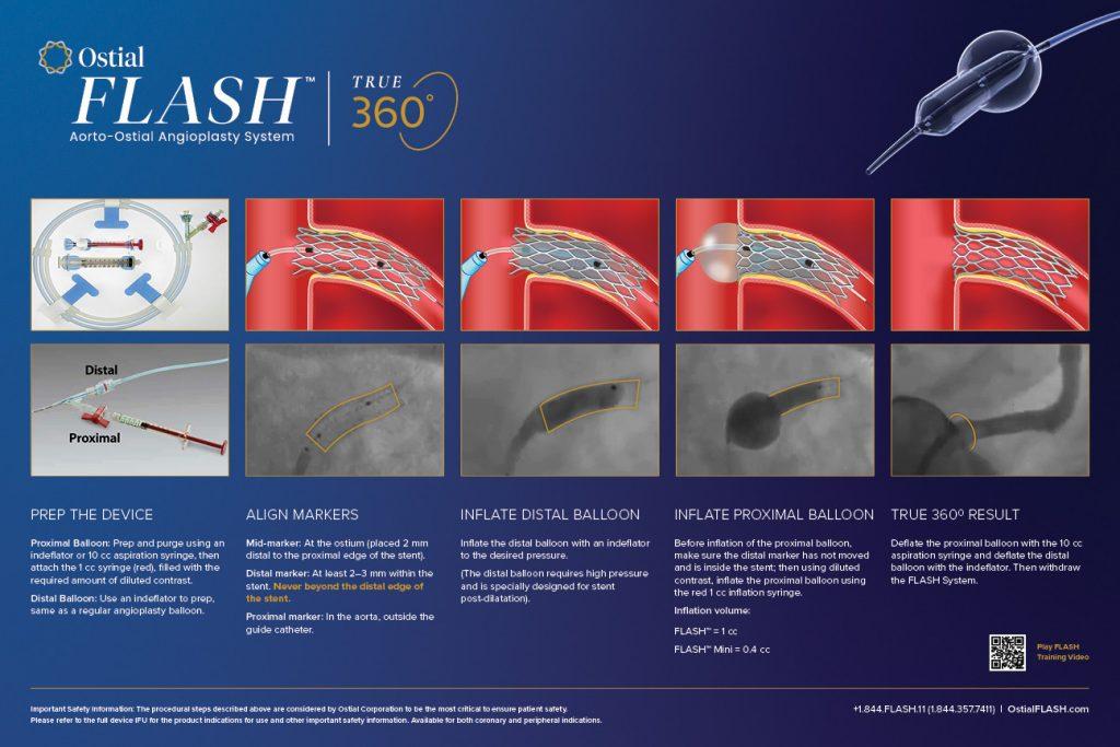 Ostial-14220-Procedure-Poster-18x12-FINAL-2020-09-29