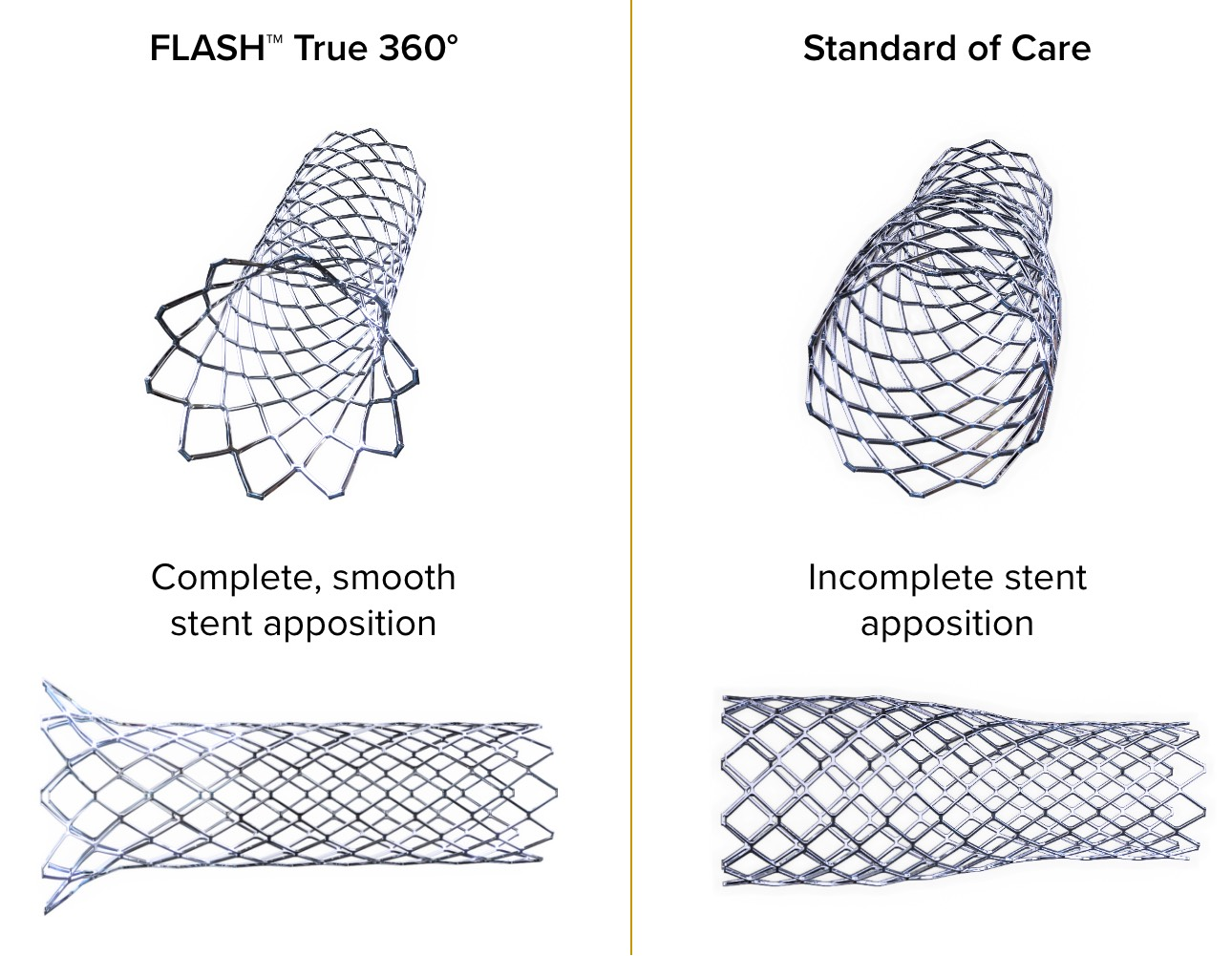 flash-vs-standard-of-care@2x