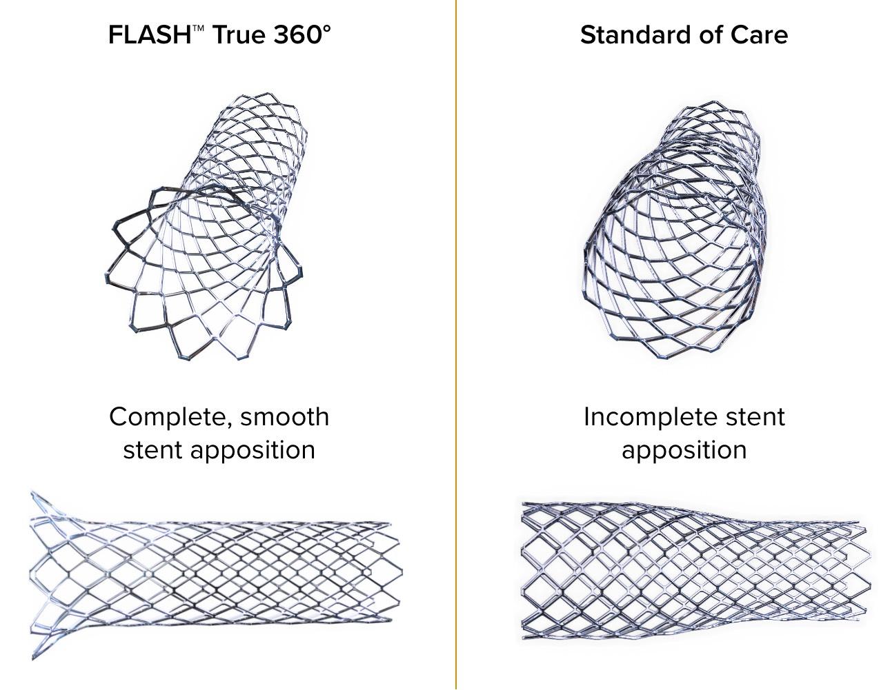flash-vs-standard-of-care@2x